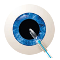 Diagram of cataract removal